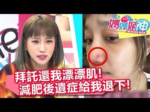 台綜-媽媽好神-20180619-減肥不成還有後遺症!?減重專家的6大小叮嚀!