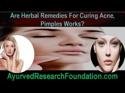Are Herbal Remedies For Curing Acne, Pimples Works