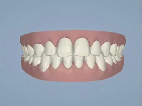 Invisalign ClinCheck Animation - Emilie H