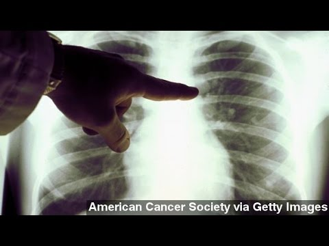 Medicare Could Cover Some Lung Cancer Screenings