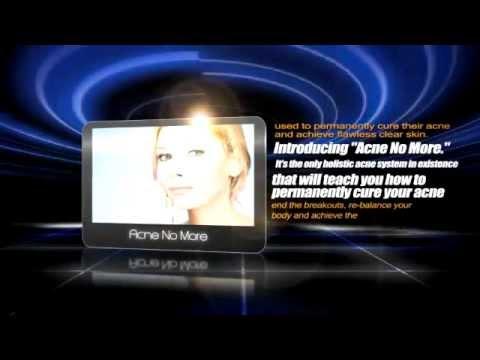 Witch Hazel Acne - Get Help With Acne