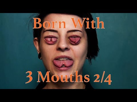 Born With Three Mouths 2/4 - Girl With Split Tongue