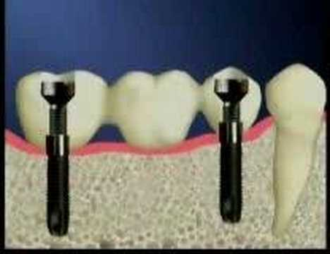 Dental Implants Bangkok, Thailand/www.thaiimplantcenter.com