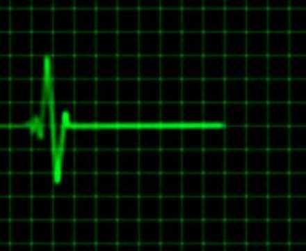 Heartbeat line gif