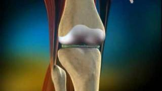 MyHEALTH : Pembedahan Penggantian Sendi Lutut
