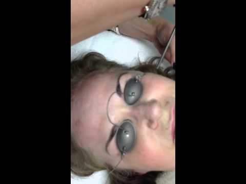 QX Max Accelera Wrinkle Reduction Laser Treatment Cleveland