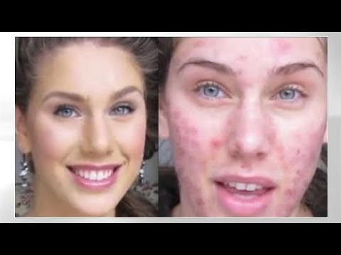 Acne Foundation Routine Flawless Skin (Full Coverage Tutorial) Cystic & Scaring Diamondsandheels14