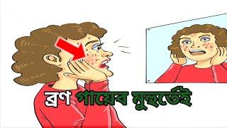 ব্রণ দূর করতে লেবুর রস কীভাবে ব্যবহার করবেন|| How to use lemon juice to remove acne||Beauty Tips