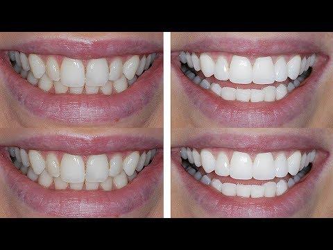 How I Transformed My Teeth!