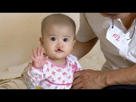 Детям с «заячьей губой» делают бесплатные операции (новости)