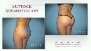 Brazilian Butt Lift & Buttock Augmentation Beverly Hills | Dr. William Bruno