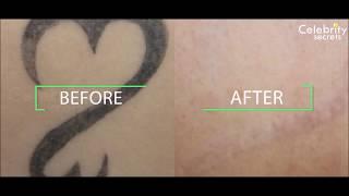 Laser Tattoo removal @ Celebrtiy Secrets, Hyderabad . Call 97055 46999
