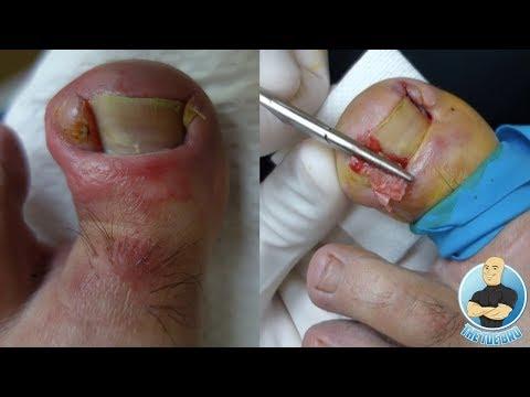INFECTED INGROWN TOENAIL REMOVAL OF DEFORMED TOE!!!
