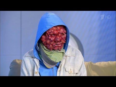 Здоровье. Средневековая болезнь: проказа. (13.06.2016)