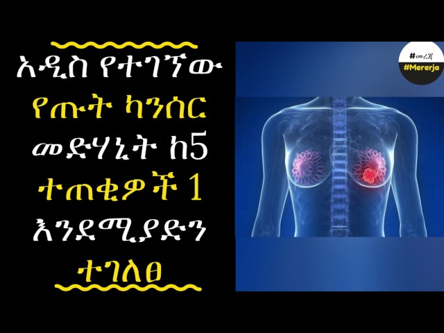 ETHIOPIA - New breast cancer drugs could help more than previously thought