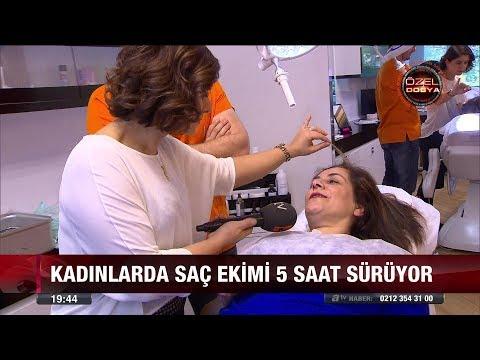 Kadınlarda saç ekimi furyası! - 7 Aralık 2017