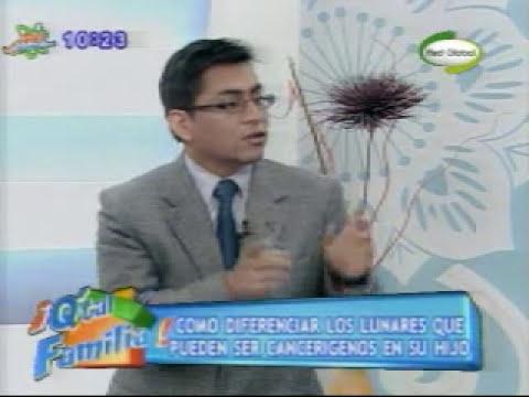 Los lunares, lunares cancerigenos, lunares malignos - Entrevista en Red Global en Lima Perú