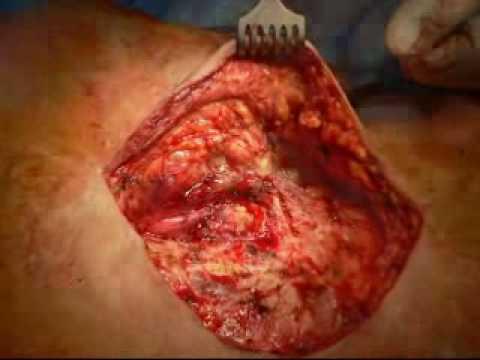 Lipoma and liposarcoma | DermNet New Zealand