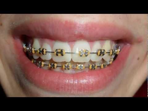 Aparelho ortodontico Antes e Depois- 1 Ano-Braces Before and after- 1-Year