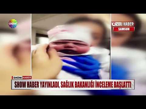 Show Haber yayınladı, Sağlık Bakanlığı inceleme başlattı