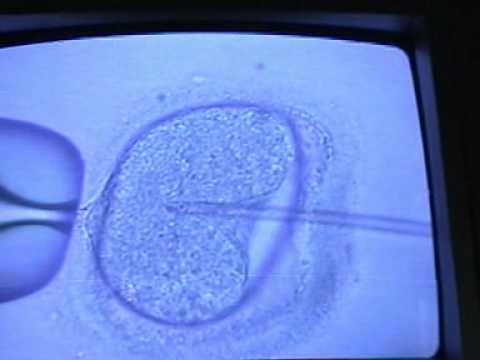 In Vitro Fertilization (IVF) Procedure (Part 3)
