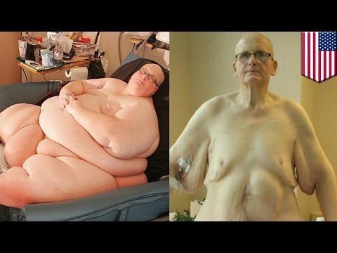 '세계에서 가장 뚱뚱한 남자' 결국 피부 제거술 받아