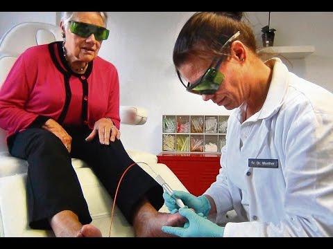 Gribok der Nägel der Beine vom Knoblauch zu behandeln