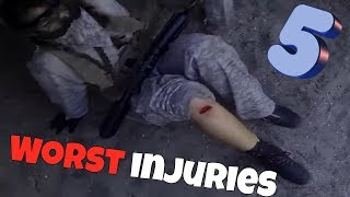 Top 5 Worst Airsoft Injuries (Graphic)|2018