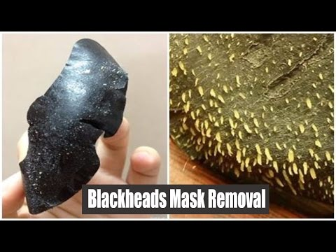 Blackheads Mask Removal | Peel Off Mask