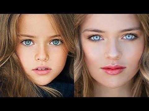 Dünyanın En Güzel 10 Çocuğu ARTIK BÜYÜDÜ