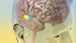 Tinnitus Treatment - Causes and treatment of tinnitus
