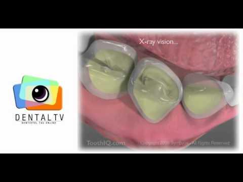 Igiena orală