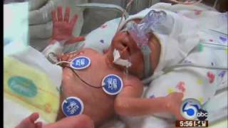 Surprised mother gives birth to twins seven days apart