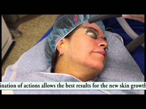 Laser Acne Scar Removal Treatment Newport Beach-Fair Skin