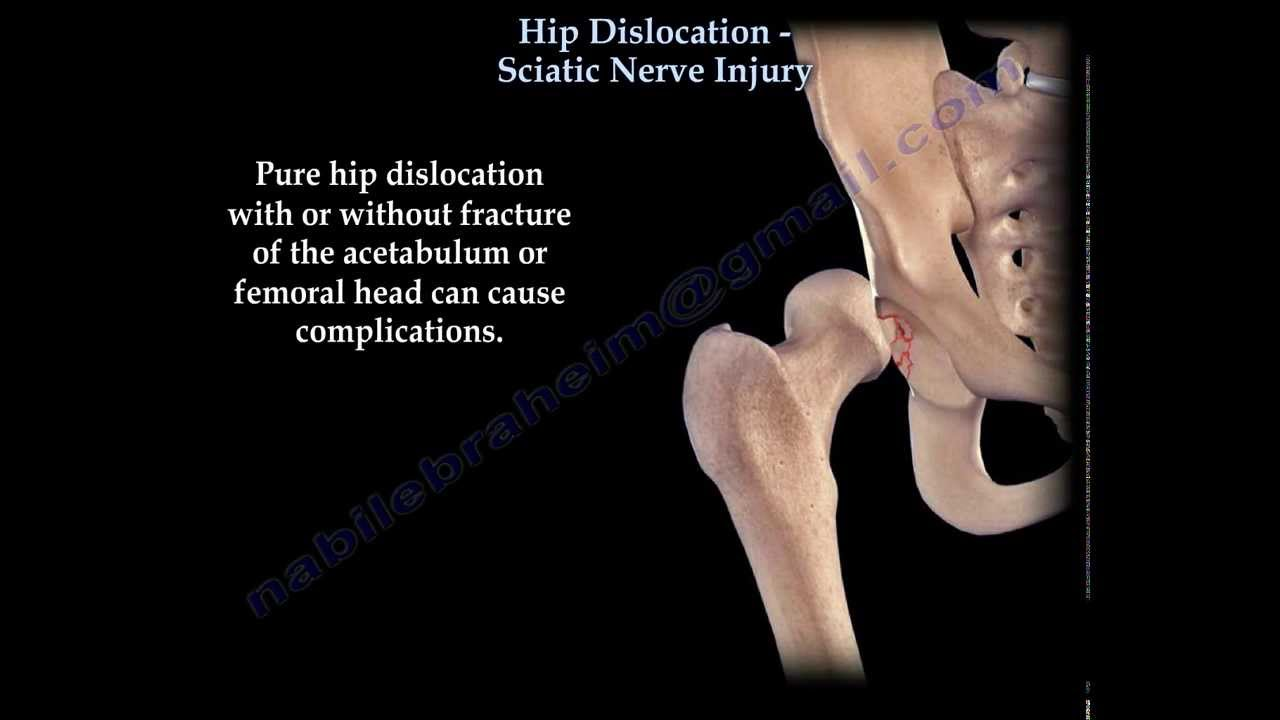 Hip Dislocation Sciatic Nerve Injury Everything You
