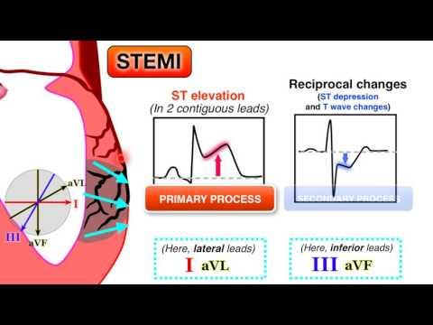 Ischemia 6/7 - STEMI on ECG