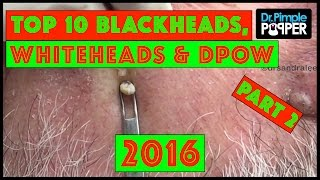 My Top 10 BEST Blackheads, Whiteheads & Dilated Pores of Winer of 2016! | Part 2