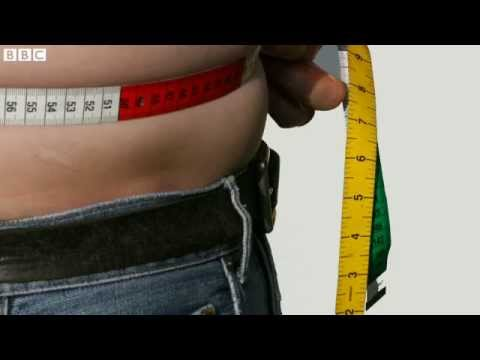 Obesity 'costing same as smoking'