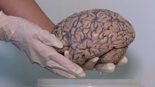 Belgium gets world's biggest pickled brain collection