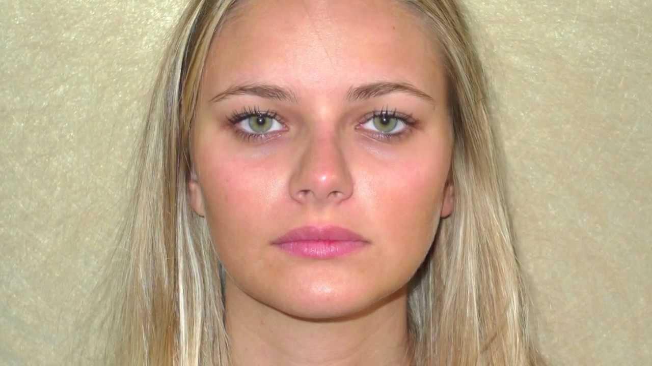 Marie effet gloss des l vres pulpeuses et naturelles lips augmentation juvederm volbella - Femme pulpeuse image ...