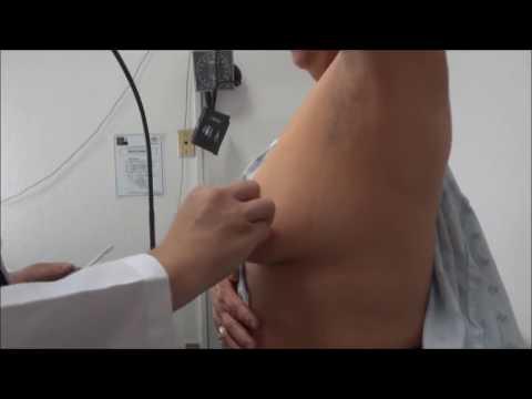 Quiste mamario. Tratamiento en el consultorio.