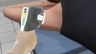 Miradry - Permanent Solution to Excessive Underarm Sweating (Hyperhidrosis)