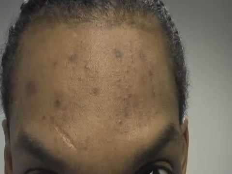The Acne Practice  (Dark Marks and Acne 3)
