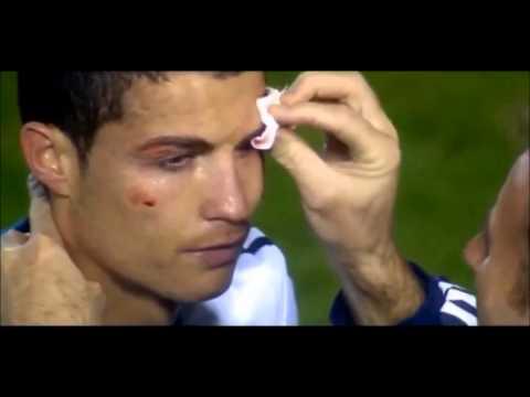cristiano ronaldo es golpeado en el ojo (Madrid vs levante)