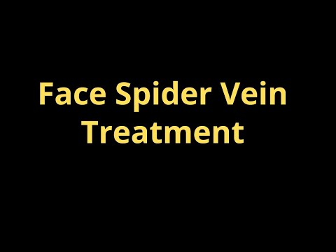 Thread Veins on the Nose and Cheeks Facial Spider Veins