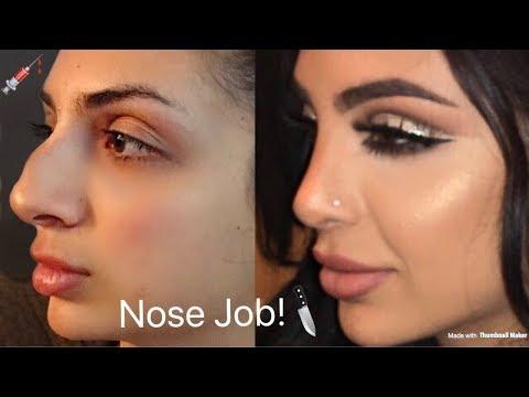 MY NOSE JOB! Plastic Surgery Tell All; SadiaSlayy thumbnail