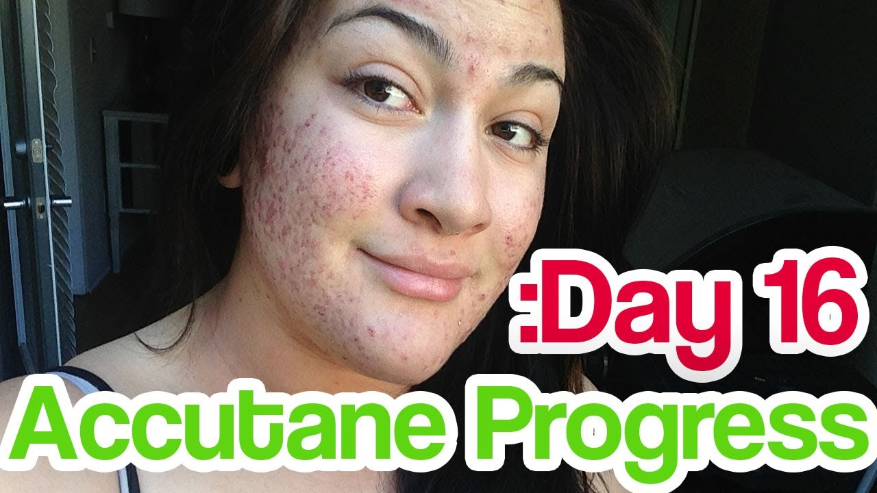 How safe is accutane