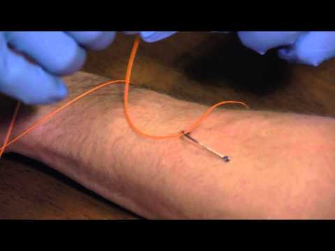 How To Remove a Fish Hook Pt 1, Hook in Arm - Cross Current TV - Episode 1