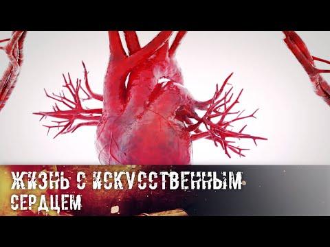 Человек со стальным электрическим сердцем