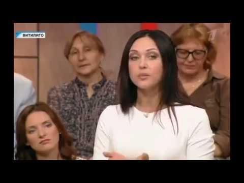 Врач-косметолог Лейла Роз о витилиго (Таблетка на Первом)